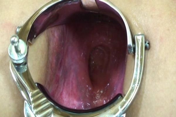 Kinky Objects For Vaginal Penetration 83
