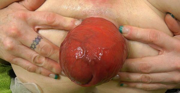 Dilation help me anus